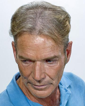 solutions before after mens gallery hair restoration systems 15 mens before and after photo 02