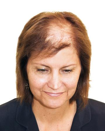 solutions before after womens gallery hair restoration systems 09 womens before and after photo 02